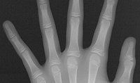 Hand / Wrist Projection
