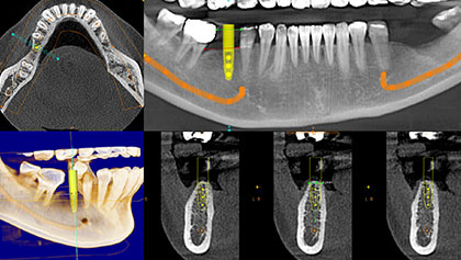 Dental Cone Beam CT
